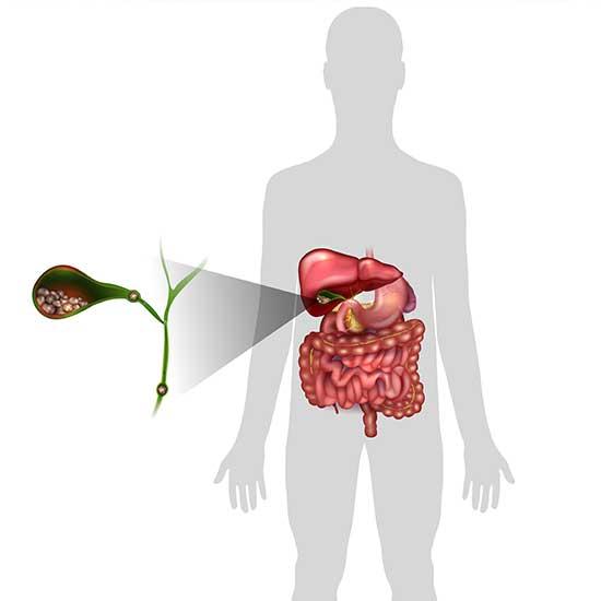 Gallensteine-Behandlung-dr-kisser-wien