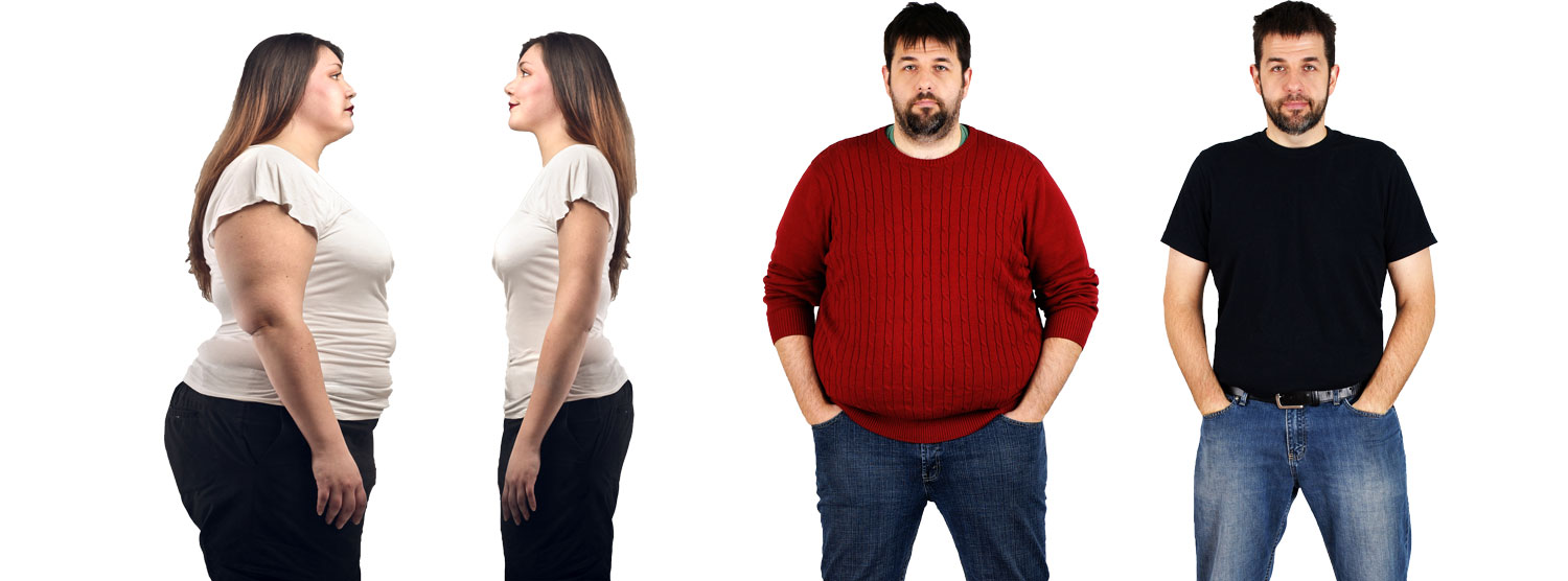 Overweight and obesity /Adipositas center for weight loss